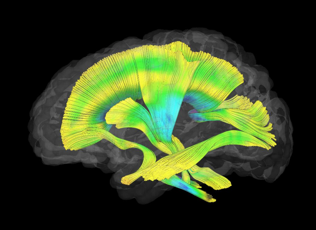 Image of a brain from the fragile X study